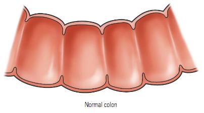 Colorectal Cancer Crc American Gastroenterological Association